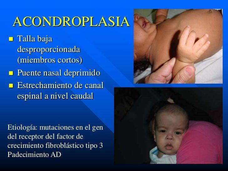 ACONDROPLASIA   Talla baja    desproporcionada    (miembros cortos)   Puente nasal deprimido   Estrechamiento de canal ...