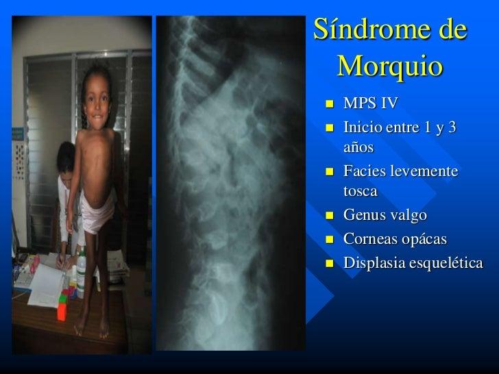 Síndrome de  Morquio   MPS IV   Inicio entre 1 y 3    años   Facies levemente    tosca   Genus valgo   Corneas opácas...