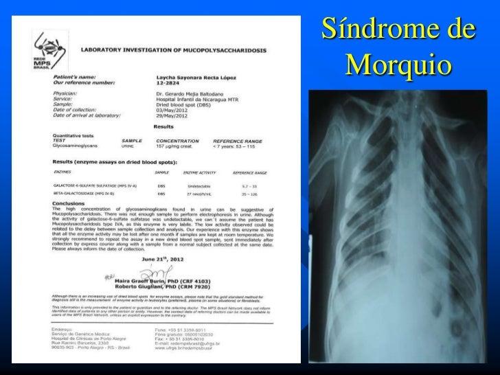 Síndrome de  Morquio