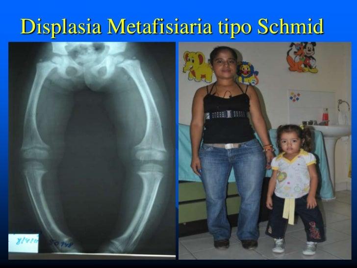 Displasia Metafisiaria tipo Schmid