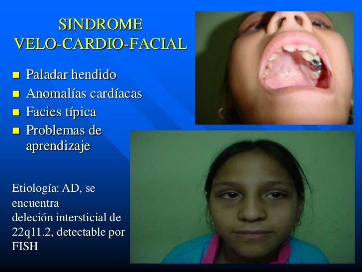 SINDROMEVELO-CARDIO-FACIAL   Paladar hendido   Anomalías cardíacas   Facies típica   Problemas de    aprendizajeEtiolo...