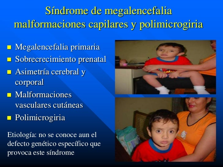 Síndrome de megalencefalia    malformaciones capilares y polimicrogiria   Megalencefalia primaria   Sobrecrecimiento pre...
