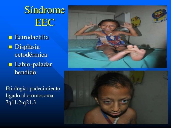Síndrome          EEC    Ectrodactilia    Displasia     ectodérmica    Labio-paladar     hendidoEtiologia: padecimiento...