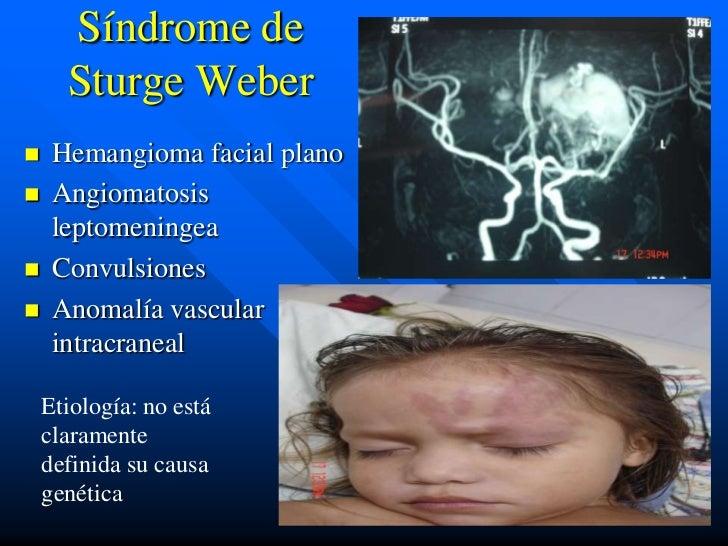 Síndrome de      Sturge Weber    Hemangioma facial plano    Angiomatosis     leptomeningea    Convulsiones    Anomalía...
