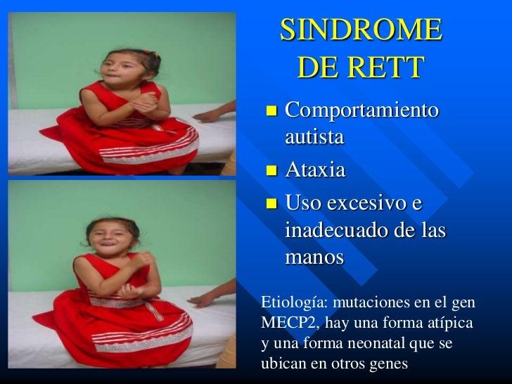 SINDROME     DE RETT Comportamiento  autista Ataxia Uso excesivo e  inadecuado de las  manosEtiología: mutaciones en el...