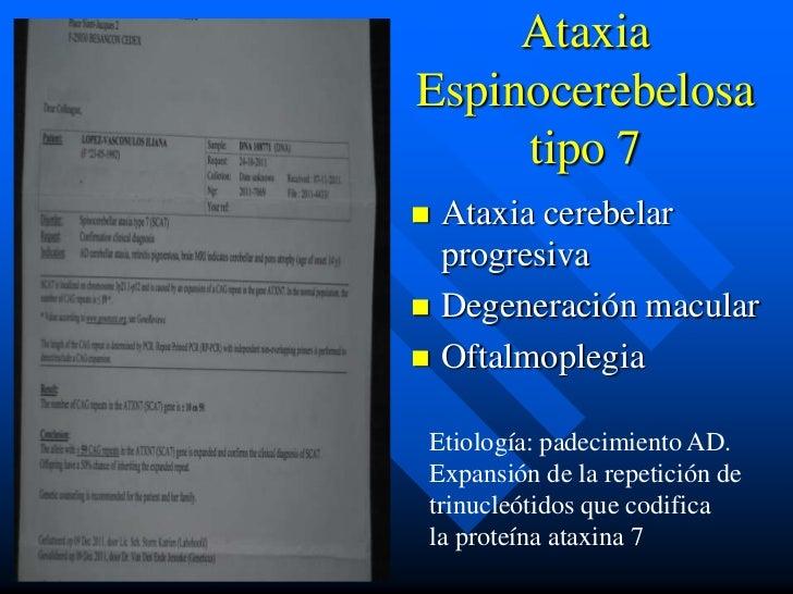 AtaxiaEspinocerebelosa     tipo 7 Ataxia cerebelar  progresiva Degeneración macular Oftalmoplegia Etiología: padecimien...