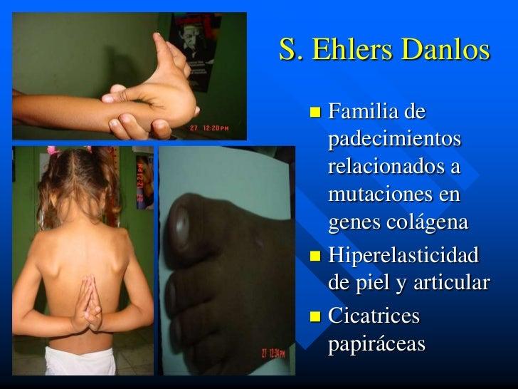 S. Ehlers Danlos   Familia de    padecimientos    relacionados a    mutaciones en    genes colágena   Hiperelasticidad  ...