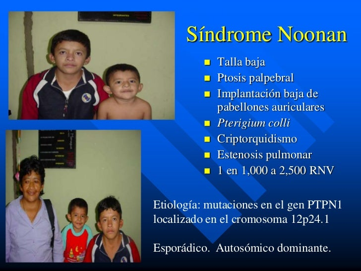 Síndrome Noonan            Talla baja            Ptosis palpebral            Implantación baja de             pabellone...