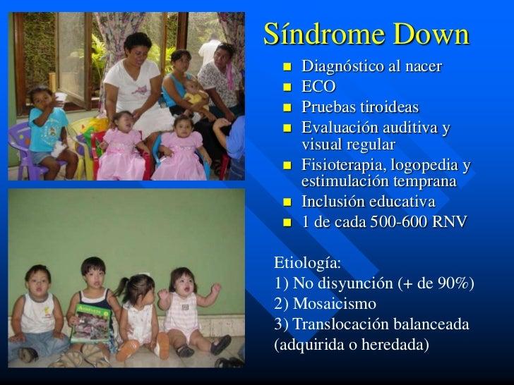 Síndrome Down    Diagnóstico al nacer    ECO    Pruebas tiroideas    Evaluación auditiva y     visual regular    Fisi...