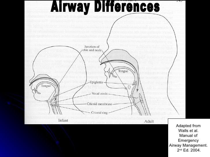 Pediatric Airways Management