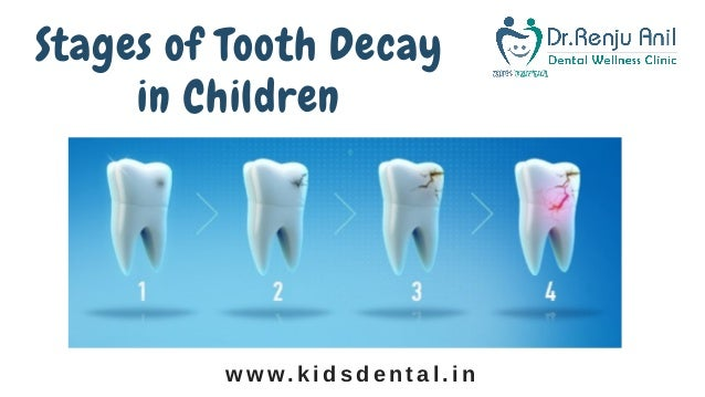 Pediatric Dental Treatment In Thrissur | | Treatment For Tooth decay …