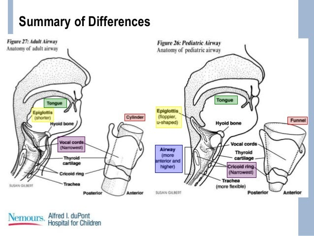 Anatomy of pediatric airway