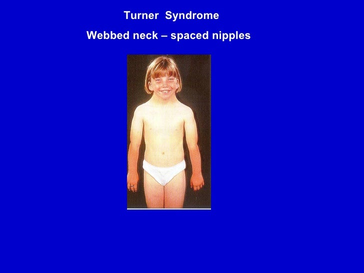 a report on the turner syndrome Although most children with turner's syndrome are under the care of most adults with turner's syndrome report satisfaction with their and turner syndrome.