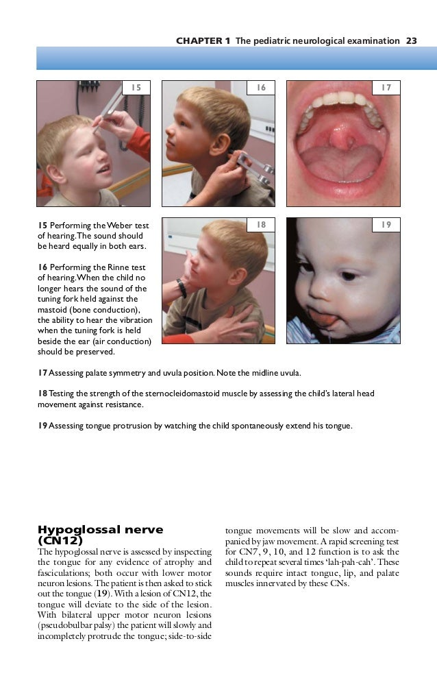 Pediatric neurology, a color handbook bale jr , james f  [srg]