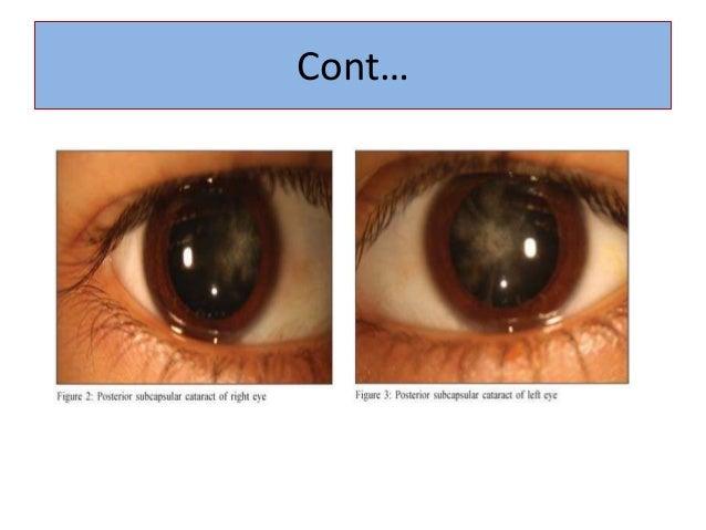 Pediatric Lens Diseases