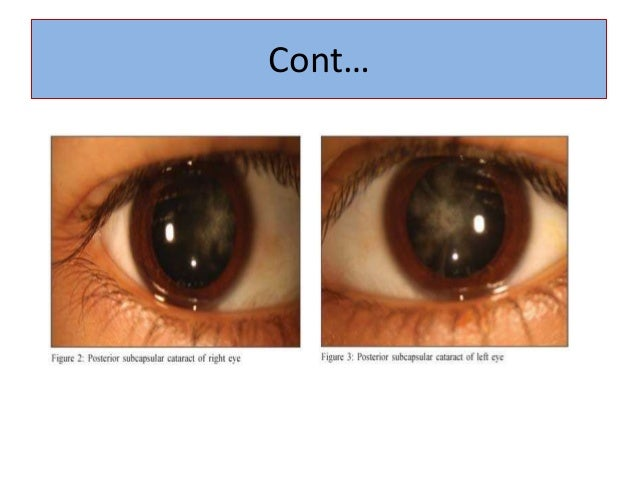 Pediatric ocular diseases