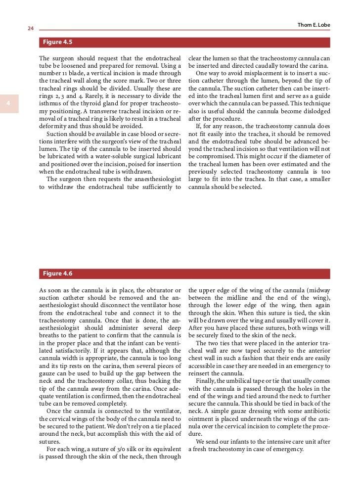 Chapter 4     Tracheostomy                             25 Figure 4.5 Figure 4.6