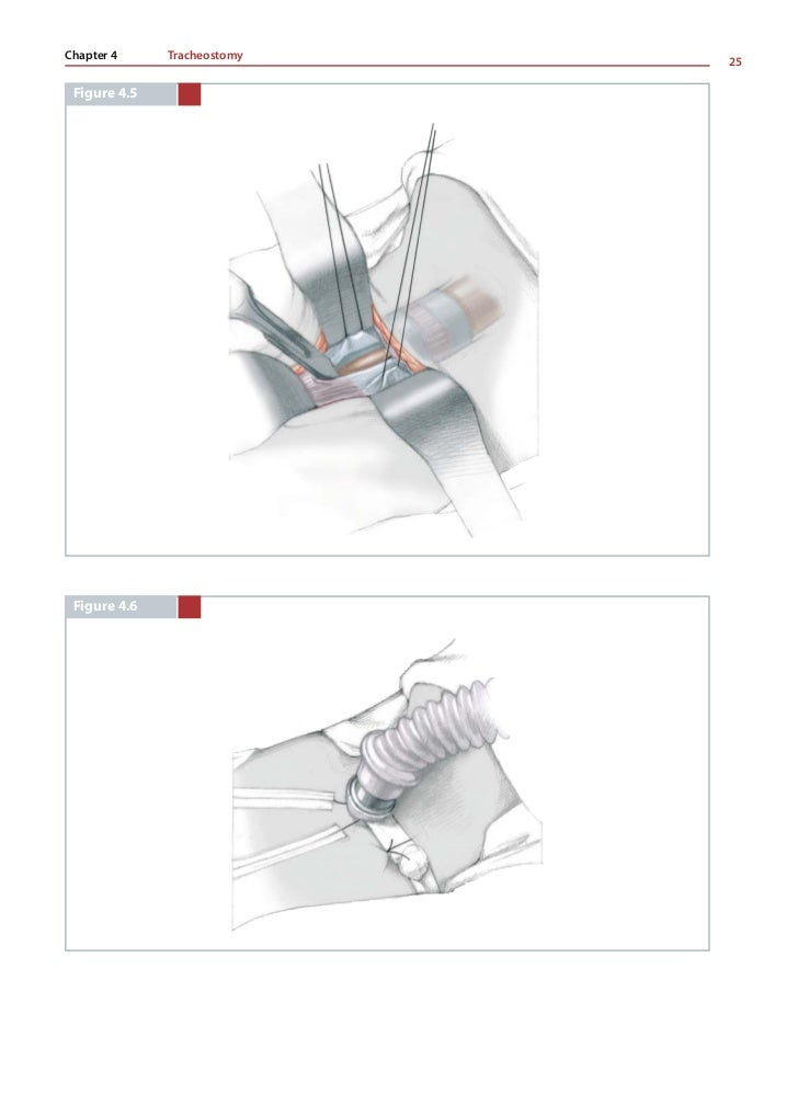 Thom E. Lobe    26          CONCLUSION         Tracheostomy is a simple technical procedure to per-               We chang...