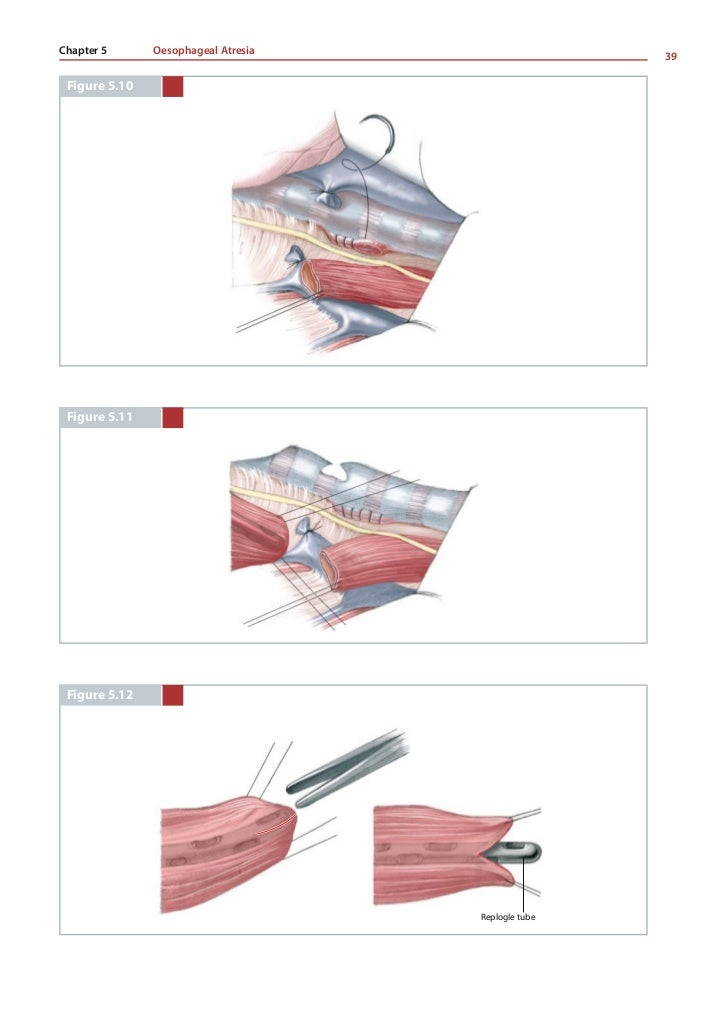 Michael E. Höllwarth, Paola Zaupa    40          Figure 5.13, 5.14         The end-to-end anastomosis is fashioned with in...