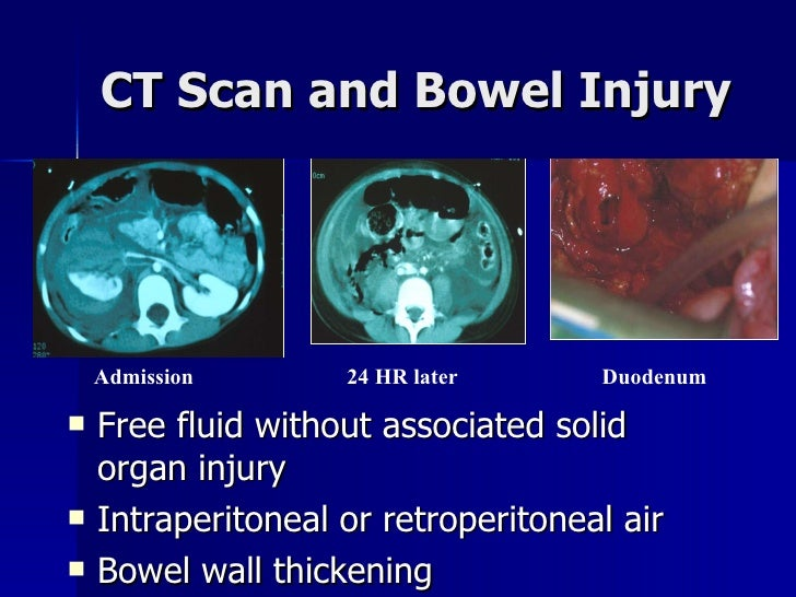CT Scan and Bowel Injury <ul><li>Free fluid without associated solid organ injury </li></ul><ul><li>Intraperitoneal or ret...