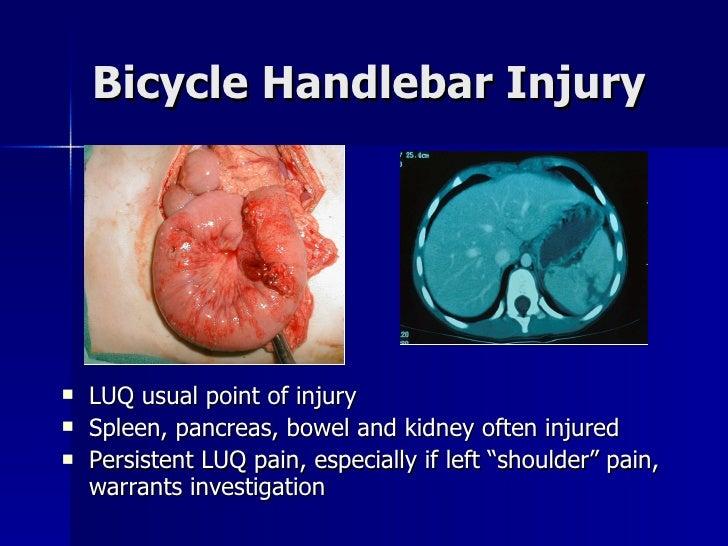 Bicycle Handlebar Injury <ul><li>LUQ usual point of injury </li></ul><ul><li>Spleen, pancreas, bowel and kidney often inju...