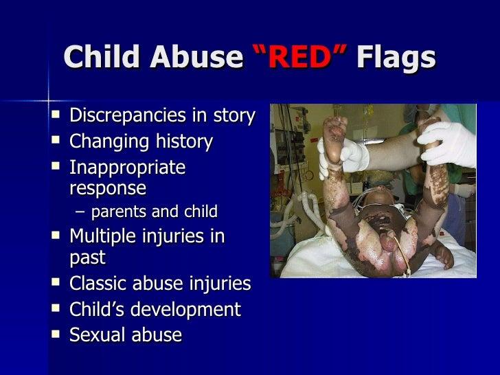 "Child Abuse  ""RED""  Flags <ul><li>Discrepancies in story </li></ul><ul><li>Changing history </li></ul><ul><li>Inappropriat..."