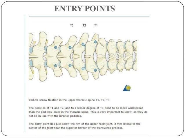 Pedicle Screws Fixation of Thoraco-Lumbar Spine