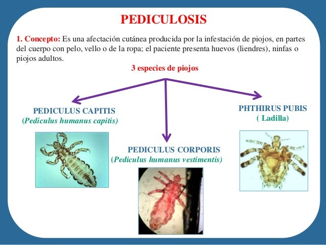 Pediculosis and Pthiriasis (Lice Infestation): Background ...