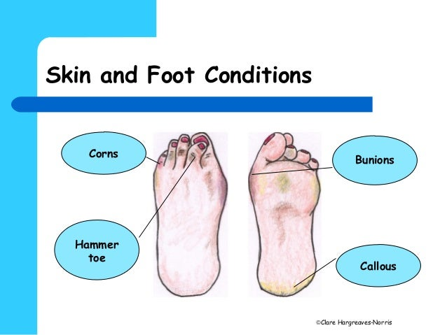 hard skin on side of big toe