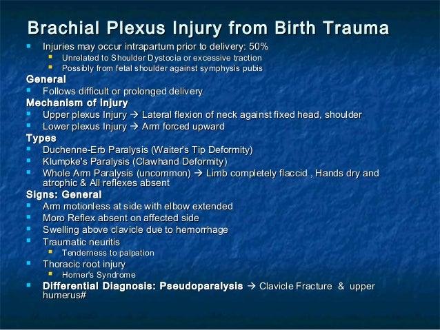 brachial plexus injury birth - photo #33