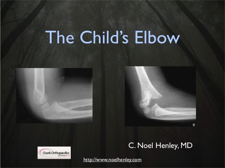 Pediatric Elbow Examination And X Rays