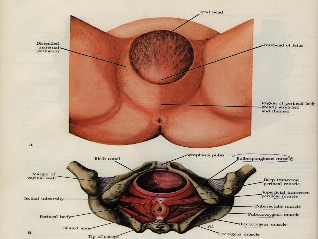 how to avoid prolapse after hysterectomy