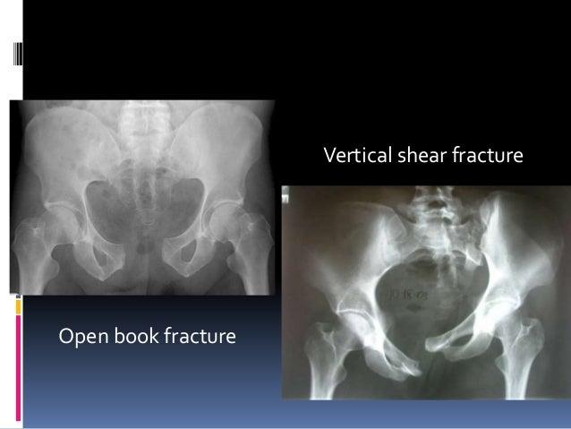 Pelvic injuries trauma 2012