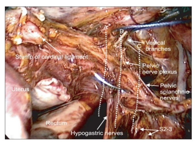 Surgical Anatomy of Pelvic nerves
