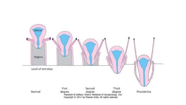 Pelvic organ prolapse ... Uterine Prolapse Grades