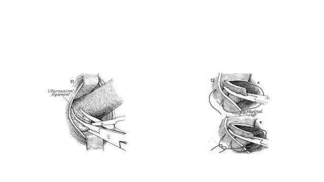 Pelvic organ prolapse gynaecology ppt