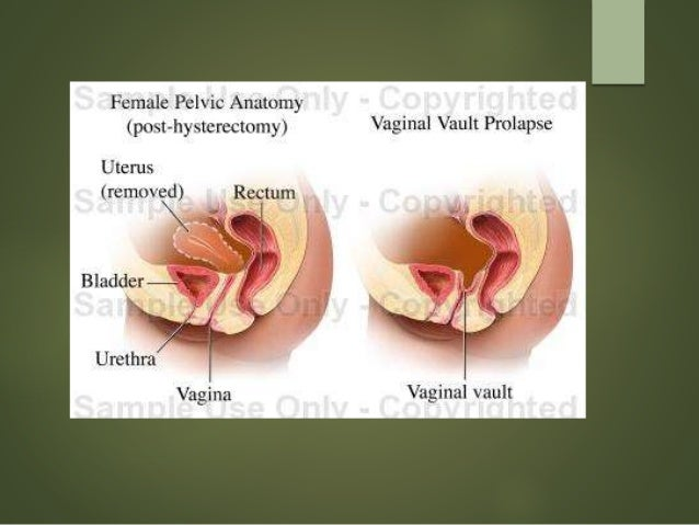 Pelvic organ prolapse – Management