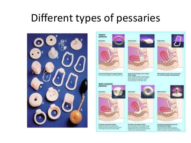 Uterine Prolapse Pessary Pelvic organ prolapse
