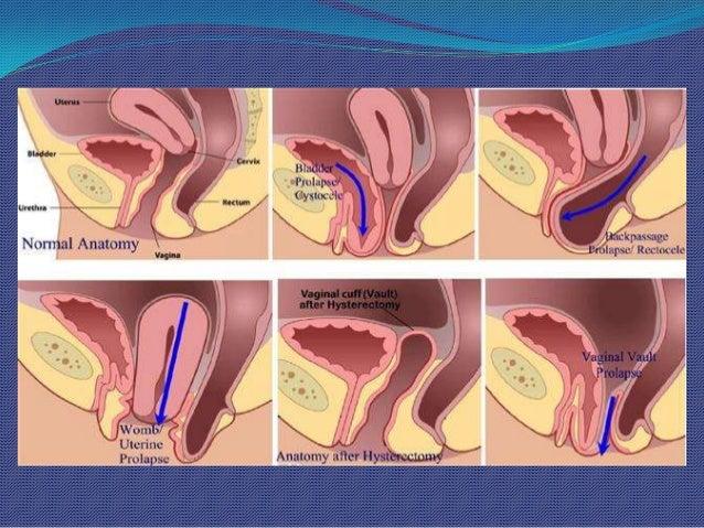 Гинекология фистинг