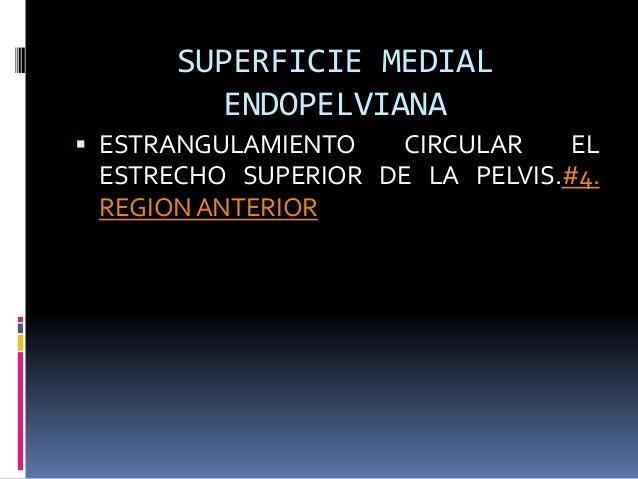 SUPERFICIE MEDIAL ENDOPELVIANA  ESTRANGULAMIENTO CIRCULAR EL ESTRECHO SUPERIOR DE LA PELVIS.#4. REGION ANTERIOR