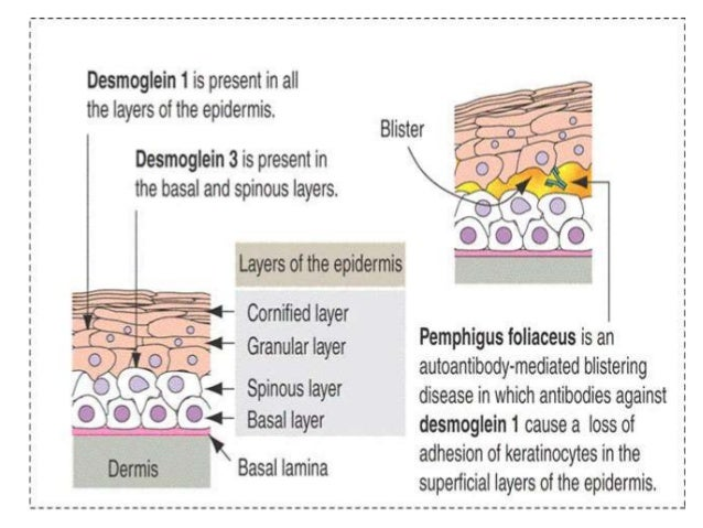 pemphigus vulgaris presentation, Skeleton