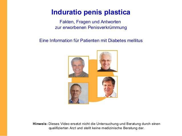 Induratio penis plastica               Fakten, Fragen und Antworten             zur erworbenen Penisverkrümmung   Eine Inf...