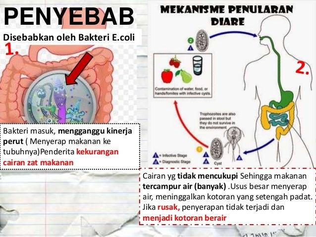 Penyakit Pencernaan Biology Kelas XI