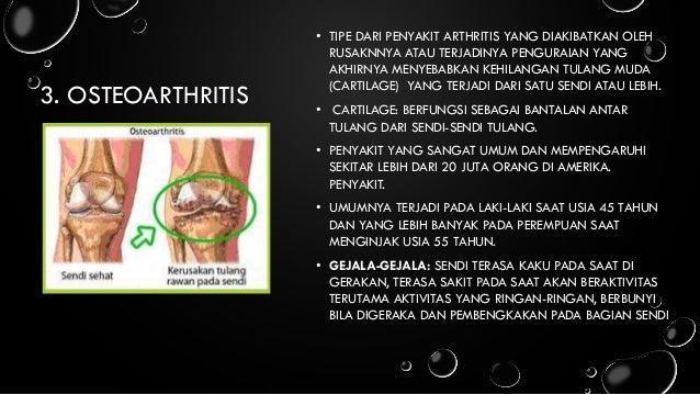 Sakit Lutut Sebelah Kanan – Penyebab, Gejala Dan Solusinya
