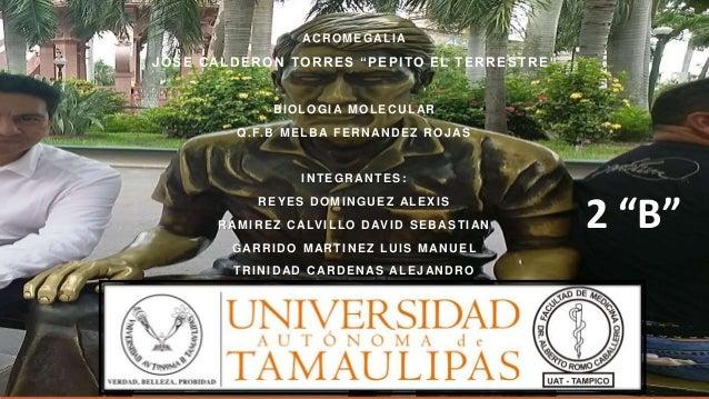 """ACROMEGALIA JOSE CALDERON TORRES """"PEPITO EL TERRESTRE """" BIOLOGIA MOLECULAR Q.F.B MELBA FERNANDEZ ROJAS INTEGRANTES: REYES ..."""