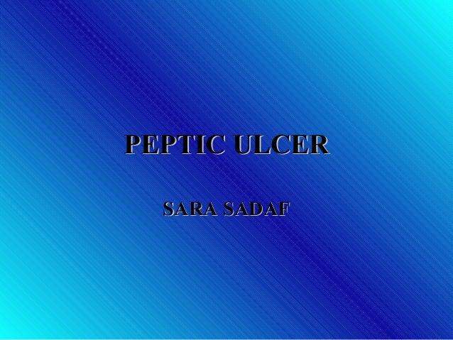 PEPTIC ULCERPEPTIC ULCER SARA SADAFSARA SADAF