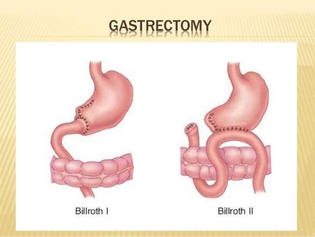 Peptic Ulcer Amp Upper Gi Bleeding