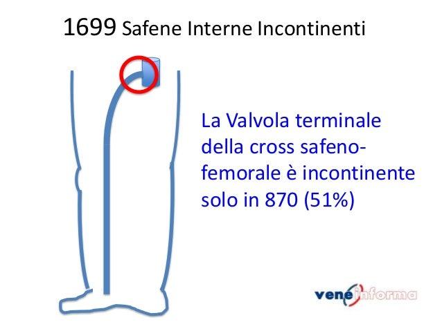 1699 Safene Interne Incontinenti  La Valvola terminale della cross safenofemorale è incontinente solo in 870 (51%)