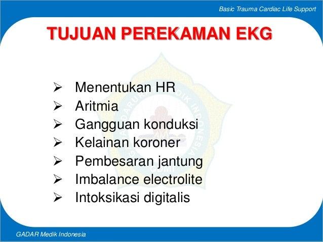 PEREKAMAN EKG Slide 3