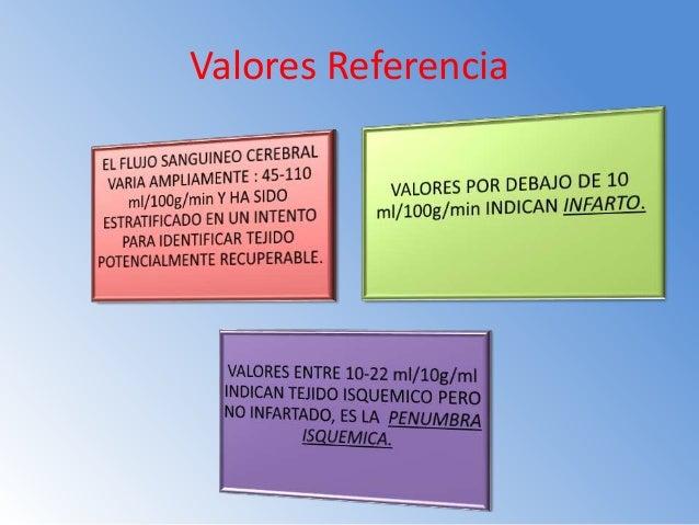 METODOS DE ESTUDIO PARA INFARTO AGUDO CEREBRAL METODO SPECT MEDICINA NUCLEAR CON RADIOTRAZADORES. RMN POR IMÁGENES DE DIFU...